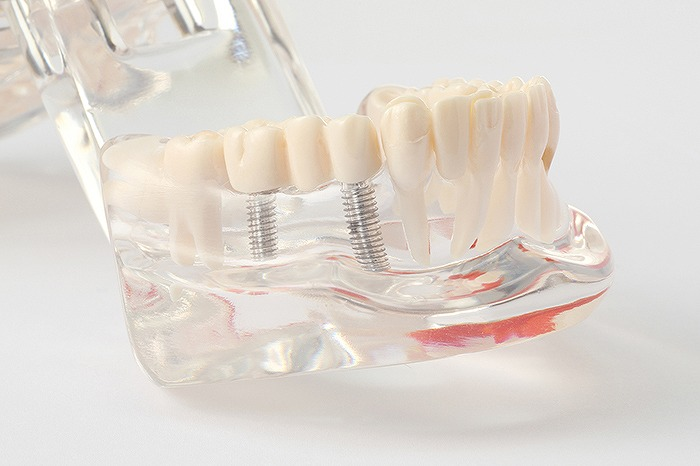 特徴3 歯を失ってしまった方のインプラント治療